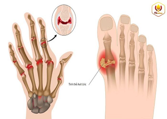 Nỗi đau bệnh xương khớp gây ra? Bệnh gout